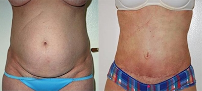 Mini Tummy Tuck Gallery