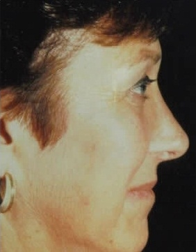 Rhinoplasty. After Treatment Photos - female, right side view, patient 2
