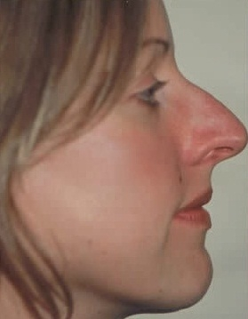 Rhinoplasty. Before Treatment Photos - female, right side view, patient 14
