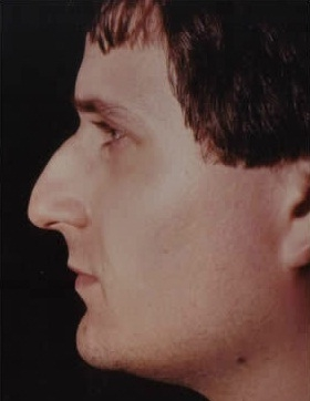 Rhinoplasty. Before Treatment Photos - male, left side view, patient 20