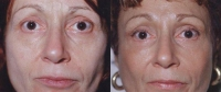 Browlift: Before and After Treatment Photos - female, front view, patient 7