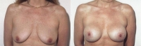 Breast Lift: Before and After Treatment Photos - female, front view, patient 1