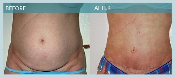 Male Liposuction New York