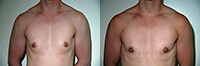 Female to Male Top Surgery. Before and After Treatment Photos - male, front view, patient 1