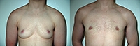 Female to Male Top Surgery. Before and After Treatment Photos - male, left side oblique view, patient 3