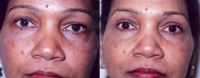 Eyelid Tuck - Before and After Treatment Photos - female, front view, patient 1