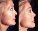Facelift - Before and After Treatment Photos - female, right side view, patient 1