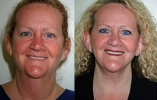 Facelift - Before and After Treatment Photos - female, front view, patient 10