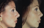 Rhinoplasty. Before and After Treatment Photos - female, right side view, patient 10