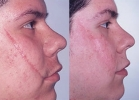 Skin Treatments - Before and After Treatment Photos - female, right side view, patient 1 (face)
