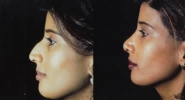Rhinoplasty. Before and After Treatment Photos - female, left side view, patient 1