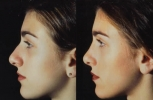 Rhinoplasty. Before and After Treatment Photos - female, left side view, patient 12