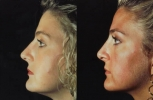 Rhinoplasty. Before and After Treatment Photos - female, left side view, patient 13