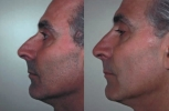 Rhinoplasty. Before and After Treatment Photos - male, left side view, patient 17