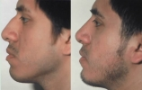 Rhinoplasty. Before and After Treatment Photos - male, left side view, patient 18