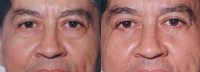 Eyelid Tuck - Before and After Treatment Photos - male, front view, patient 2