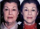 Facelift - Before and After Treatment Photos - female, front view, patient 2