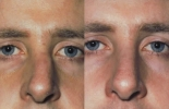 Rhinoplasty. Before and After Treatment Photos - male, front view, patient 21