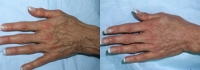 Skin Treatments - Before and After Treatment Photos - female, top view, patient 2 (hands)