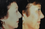 Rhinoplasty. Before and After Treatment Photos - female, right side view, patient 2