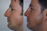 Rhinoplasty. Before and After Treatment Photos - male, left side view, patient 22