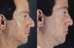 Rhinoplasty. Before and After Treatment Photos - male, right side view, patient 25