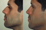 Rhinoplasty. Before and After Treatment Photos - male, left side view, patient 26