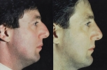 Rhinoplasty. Before and After Treatment Photos - male, right side view, patient 28