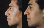 Rhinoplasty. Before and After Treatment Photos - male, left side view, patient 29
