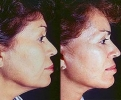 Facelift - Before and After Treatment Photos - female, right side view, patient 3
