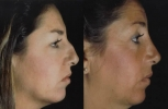 Rhinoplasty. Before and After Treatment Photos - female, right side view, patient 3