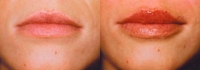 Skin Treatments - Before and After Treatment Photos - female, front view, patient 3 (lips)