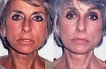 Facelift - Before and After Treatment Photos - female, front view, patient 4