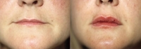 Skin Treatments - Before and After Treatment Photos - female, front view, patient 4 (lips)