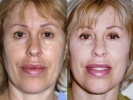Facelift - Before and After Treatment Photos - female, front view, patient 5