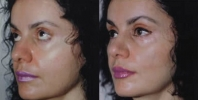 Rhinoplasty. Before and After Treatment Photos - female, left side - oblique view, patient 5