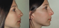 Rhinoplasty. Before and After Treatment Photos - female, right side view, patient 6
