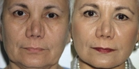 Facelift - Before and After Treatment Photos - female, front view, patient 7