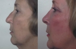 Rhinoplasty. Before and After Treatment Photos - female, left side view, patient 7