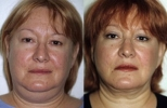 Facelift - Before and After Treatment Photos - female, front view, patient 8