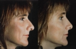 Rhinoplasty. Before and After Treatment Photos - female, right side view, patient 8