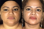 Facelift - Before and After Treatment Photos - female, front view, patient 9