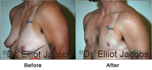 Female to Male Surgery before and after photos